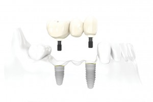 Image showing a dental implant with a fixed bridge abutment