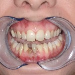1) Picture showing the patient prior to having a dental implant.