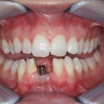 2) Picture showing a temporary abutment fitted to a dental implant
