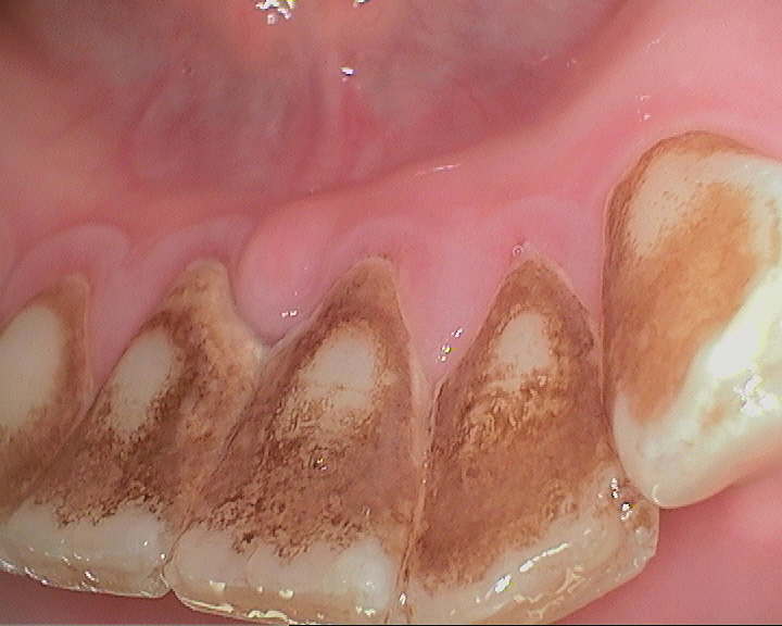 Hygiene Treatment for Gum Disease (Scale & Polish) - 02 - Before